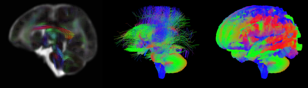 Colourful images of brain scans from the Discovering the Human Connectome Project