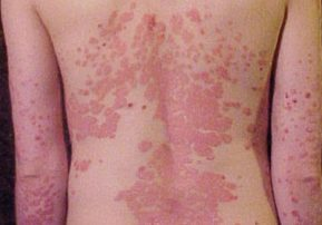 RESEARCH: Promising new target for treatment of psoriasis is safe, study shows