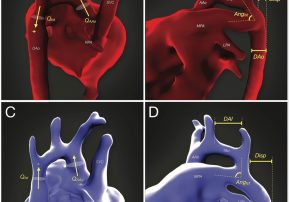 In-utero imaging to more accurately diagnose congenital heart disease
